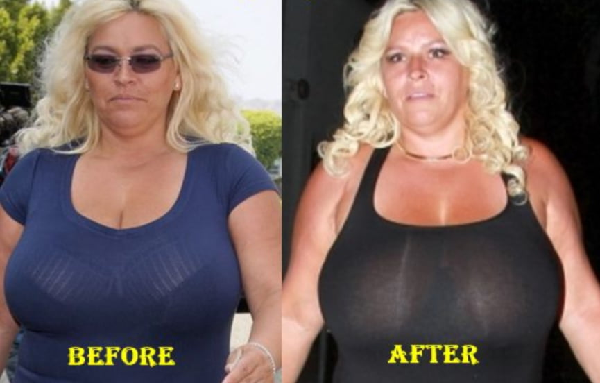 Pictures of beth chapman nude
